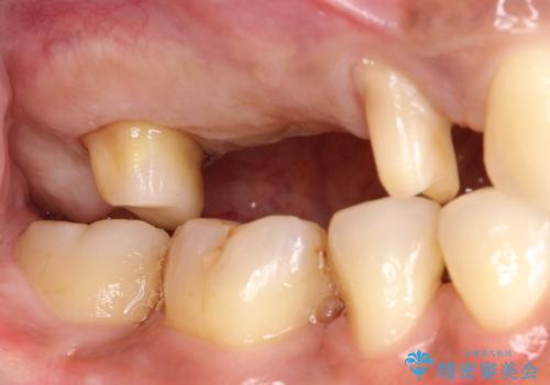 分岐部病変の奥歯→一見問題なさそうだが、抜歯しなければならないの治療中
