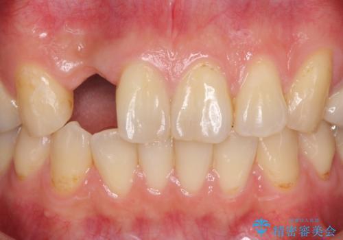 入れ歯の症例 治療前