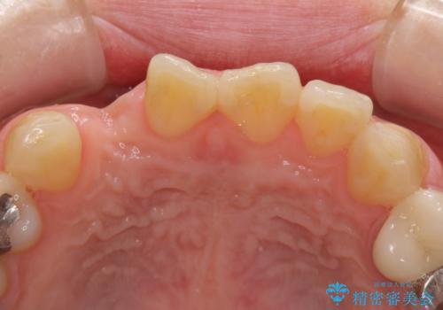 前歯の入れ歯 金属の見えないノンクラスプデンチャーの治療前