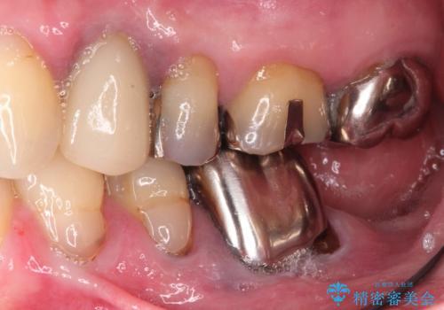 やせた下顎へのインプラントはショートインプラントで咬合回復の治療前