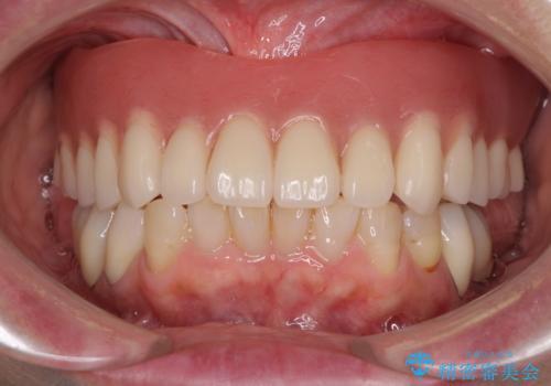 前歯が抜け落ちそう インプラントと入れ歯を用いた全顎治療の症例 治療後