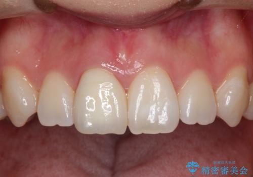 前歯の白濁が気になる オールセラミッで審美的改善の治療後