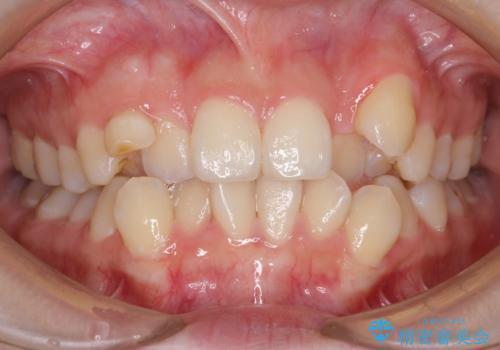 八重歯 ハーフリンガルで 乳歯が残っているの症例 治療前