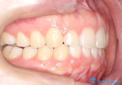 インビザラインでスキッ歯をきれいになおす invisalignの治療後