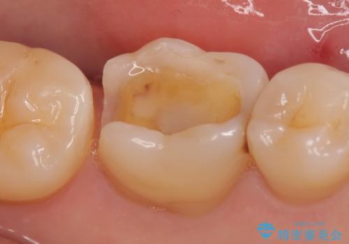 セラミックインレー 銀歯を白くの治療中