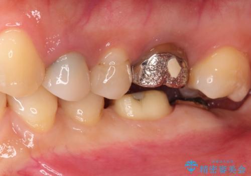奥歯がかけた、見た目もきれいに治療したいの治療中