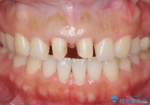欠けた歯 セラミック治療での審美回復の治療中