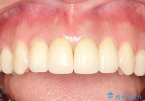 出っ歯が気になる オープンバイトを伴う前突症のインビザライン治療・セラミック治療 invisalignの治療後