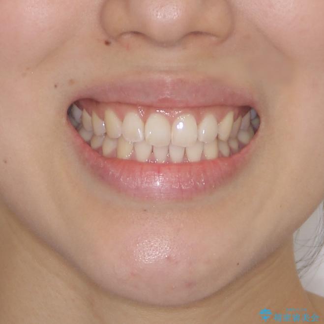 前歯のデコボコをお手軽に治したい インビザライン・ライトによる矯正治療の治療後(顔貌)