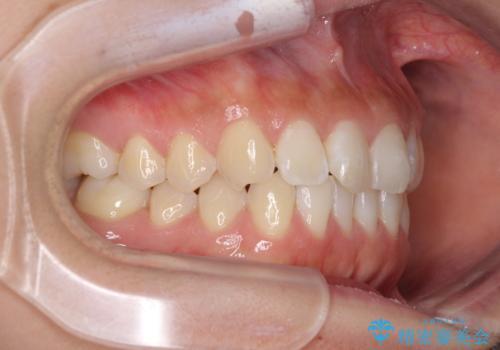 前歯のデコボコをお手軽に治したい インビザライン・ライトによる矯正治療の治療後