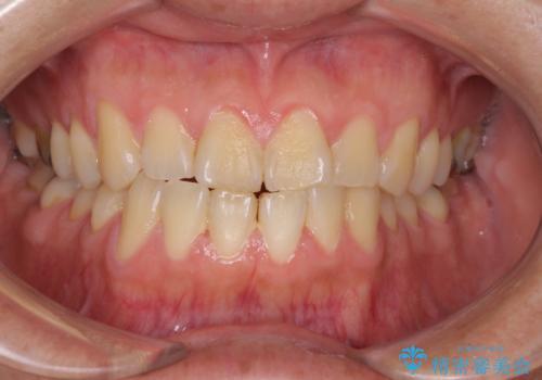 イベント前に1日で歯を白くの治療前
