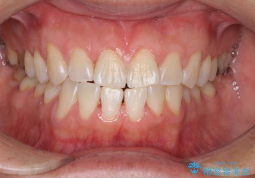 イベント前に1日で歯を白くの治療後