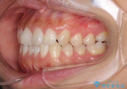 前歯のデコボコをお手軽に治したい インビザライン・ライトによる矯正治療の治療前