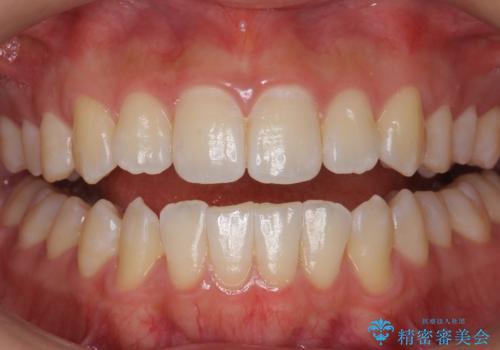PMTCエクセレントコースで歯を白くきれいにの治療前