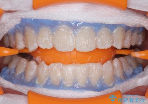 PMTCエクセレントコースで歯を白くきれいにの治療中