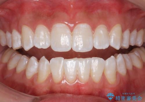 PMTCエクセレントコースで歯を白くきれいにの治療後
