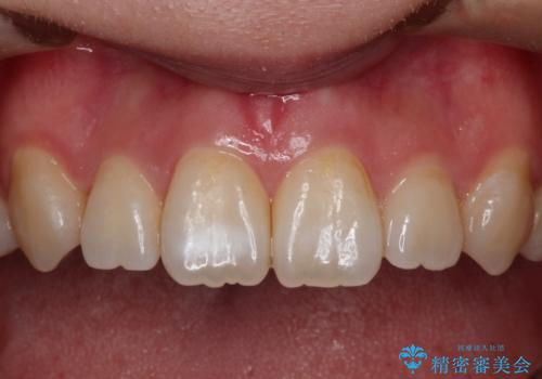 前歯の白濁が気になる オールセラミッで審美的改善の治療前