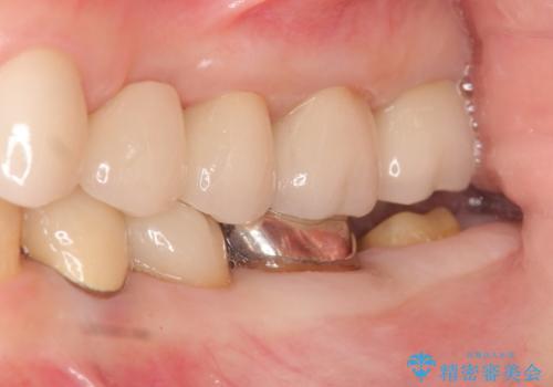銀歯が外れた オールセラミッククラウンの治療中