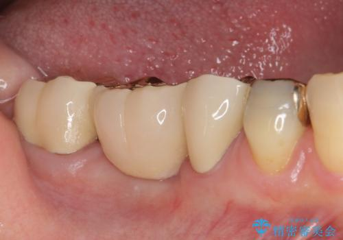割れた奥歯 ゴールドブリッジによる補綴治療の治療後
