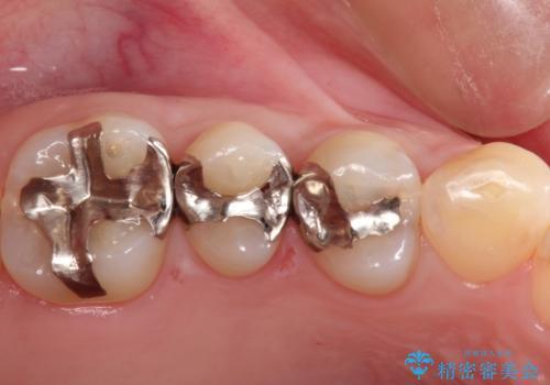 笑ったら見える部分のむし歯治療。セラミックインレーの症例 治療前