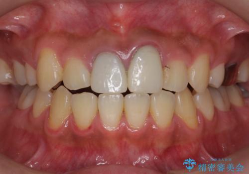 ホワイトニングエクセレントコースで歯を白く。1回目の症例 治療前
