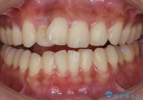 クリーニングとホワイトニングエクセレントコースで歯を白くきれいに。の治療前