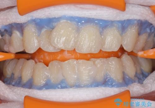 クリーニングとホワイトニングエクセレントコースで歯を白くきれいに。の治療中
