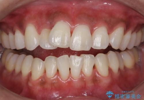 クリーニングとホワイトニングエクセレントコースで歯を白くきれいに。の治療後