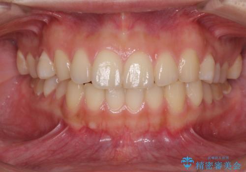 インビザラインで前歯のガタつきの改善の症例 治療前