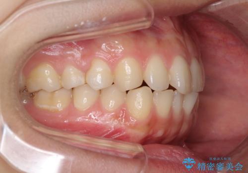 インビザラインで前歯のガタつきの改善の治療前