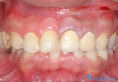 オールセラミッククラウン 全体的な歯の治療の治療前