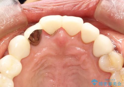 前歯のかぶせものの下に巨大な虫歯が ぎりぎり抜歯をまぬがれるにはの治療前