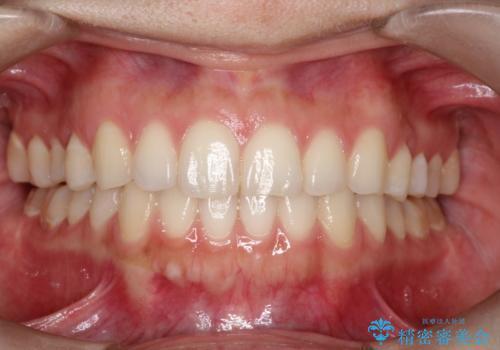 インビザラインで前歯のガタつきの改善の症例 治療後