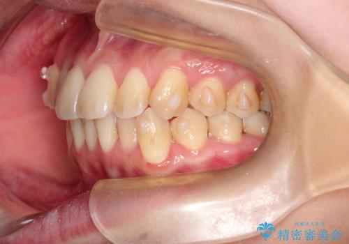 インビザラインで八重歯の矯正の治療中