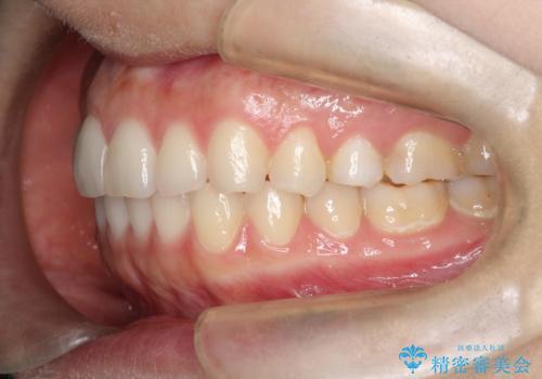 インビザラインで前歯のガタつきの改善の治療後
