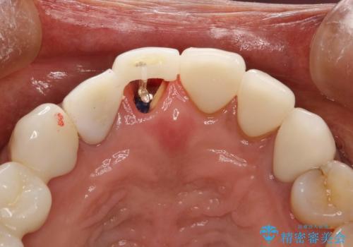 前歯のかぶせものの下に巨大な虫歯が ぎりぎり抜歯をまぬがれるにはの治療中