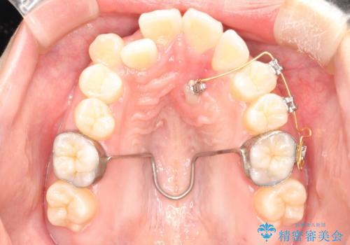 埋まった歯を出してくる矯正治療(牽引から萌出するまで)の治療中