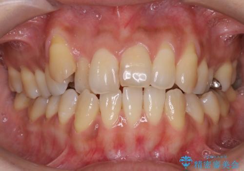 八重歯と反対咬合、下の前歯が1本少ない <span class=