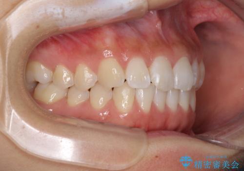 前歯のデコボコをお手軽に治したい インビザライン・ライトによる矯正治療の治療中
