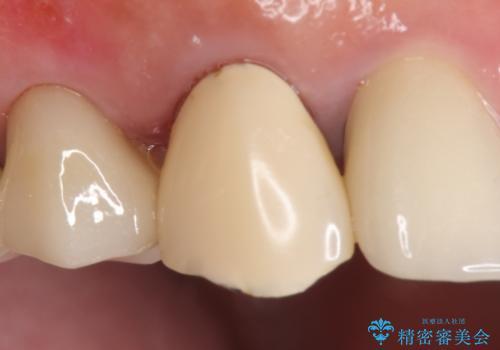 オールセラミッククラウン 歯と被せ物の隙間にできた虫歯の治療の治療前