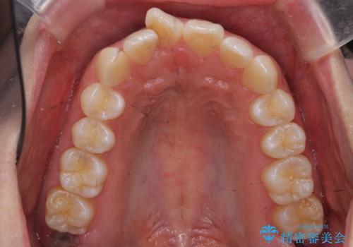 前歯のねじれ マウスピース矯正での症例 治療前