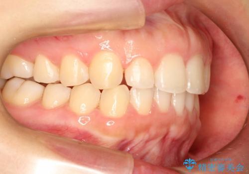 インビザラインでスキッ歯をきれいになおす invisalignの治療中