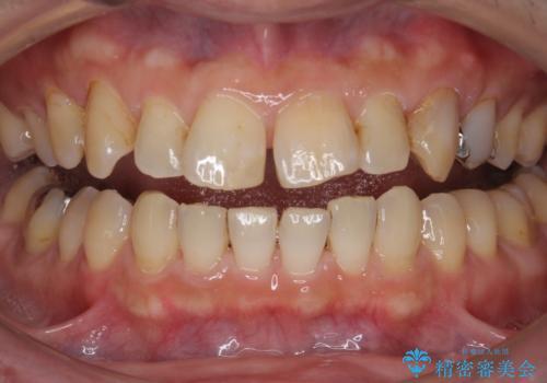 PMTCで歯の着色を除去し、ホワイトニングできれいに。の症例 治療前