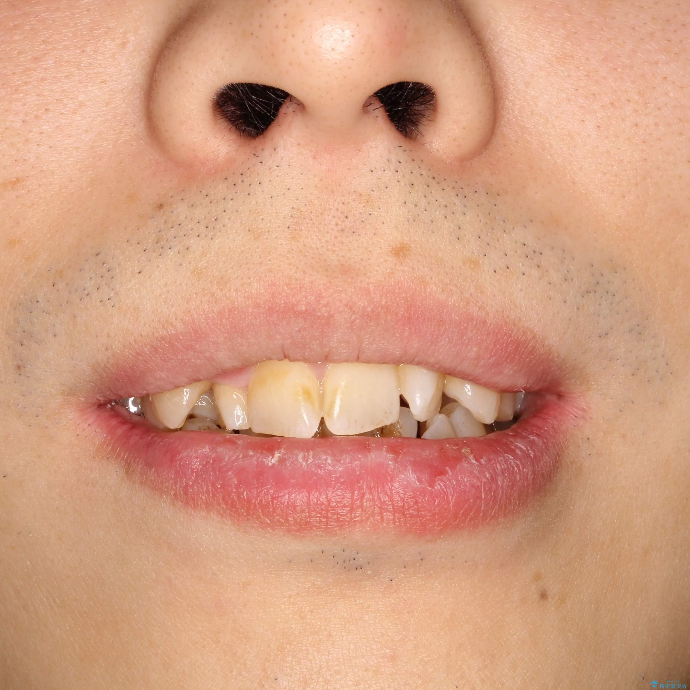 重度のガタつき 表のワイヤー矯正の治療前(顔貌)