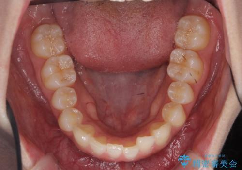 前歯のねじれ マウスピース矯正での治療前