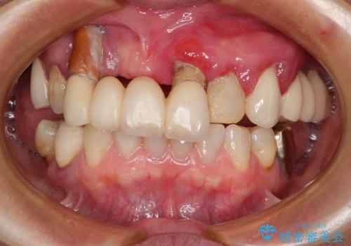 前歯が抜け落ちそう インプラントと入れ歯を用いた全顎治療の症例 治療前