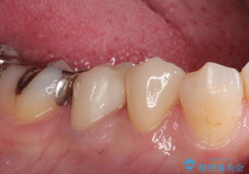 虫歯の治療 適合の良いセラミッククラウンの治療後