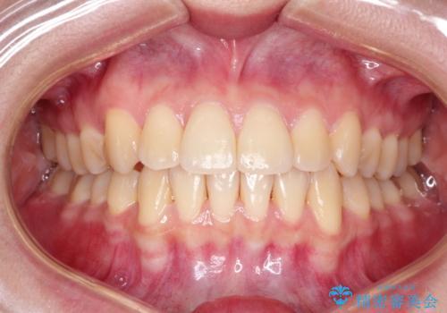インビザラインで八重歯の矯正の症例 治療後