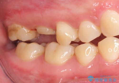 オールセラミッククラウン 歯茎より深い虫歯(縁下カリエス)の治療の治療前