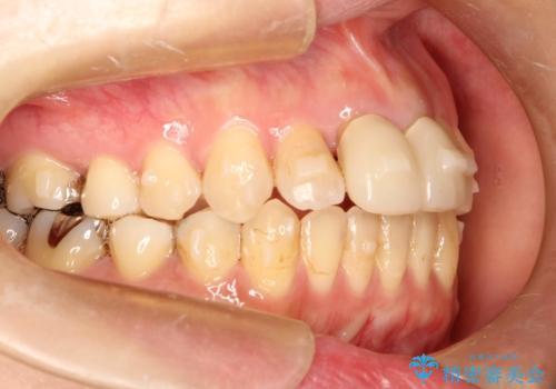 出っ歯が気になる オープンバイトを伴う前突症のインビザライン治療・セラミック治療 invisalignの治療中